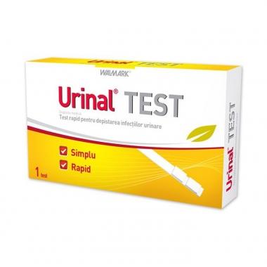 Urinal test