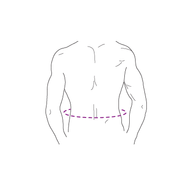 Corset abdominal pentru hernie ombilicală