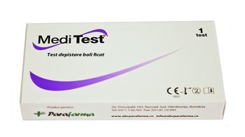 Test depistare boli ficat - urina